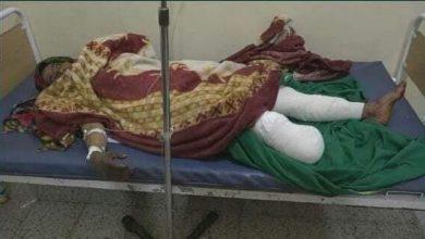 Photo of بتر قدم امرأة في تعز جراء تعرضها لانفجار لغم حوثي
