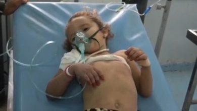 Photo of طلق ناري حوثي يهشم عظام طفلة في حيس
